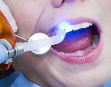 dental sealants