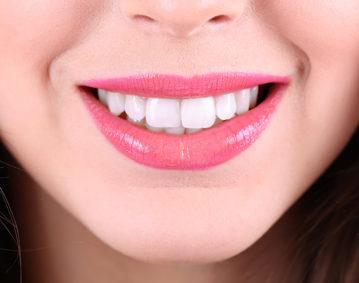 porcelain veneers dentist