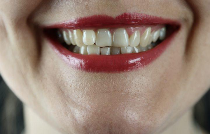 Best ways to fix the gap between your teeth